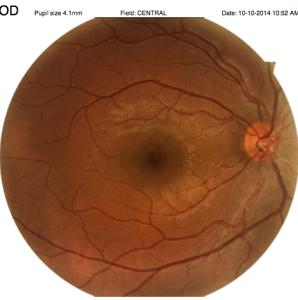 Demas- Miller Retina scan